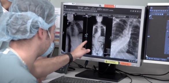 Gepersonaliseerde brace voor Scoliose patiënten